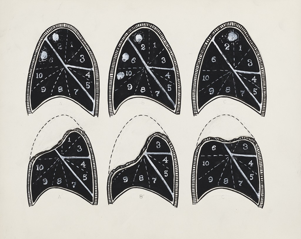 """Lung Sections,"" pen and ink on paper, c. 1947; by Evelyn Kok"